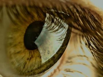Células madre de la pulpa dental pueden transformarse para tratar cicatrices en la córnea