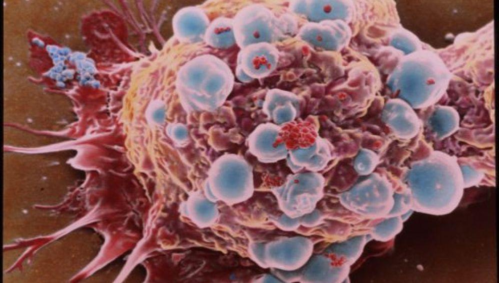 Célula cancerosa de cáncer de mama.