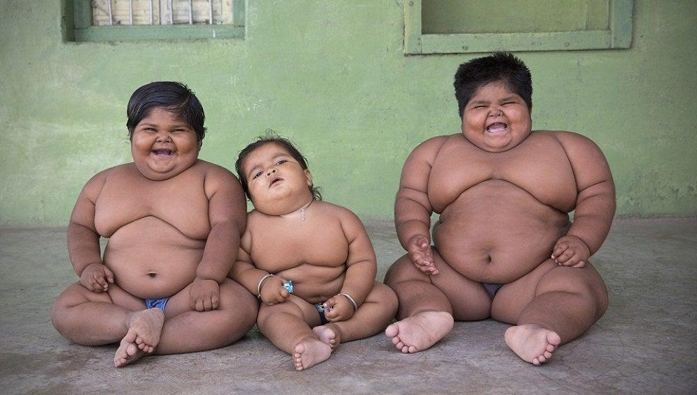 Los tres niños indios con obesidad mórbida