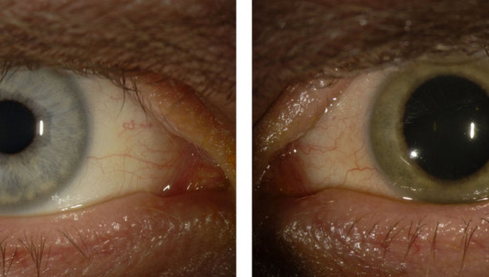 El antes y el después del ojo infectado por ébola