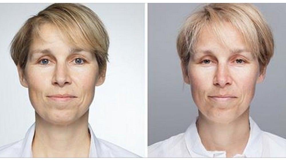 Así cambia el rostro al dormir menos de ocho horas