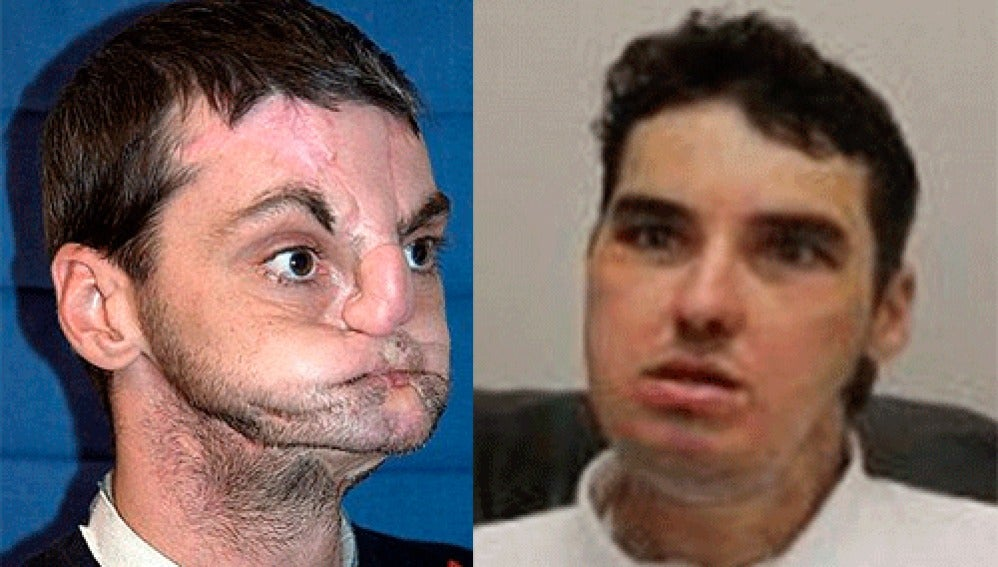 El antes y después de Richard Norris
