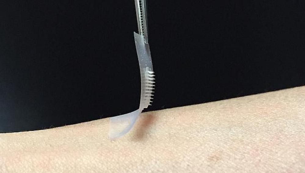 Parche de insulina con microagujas