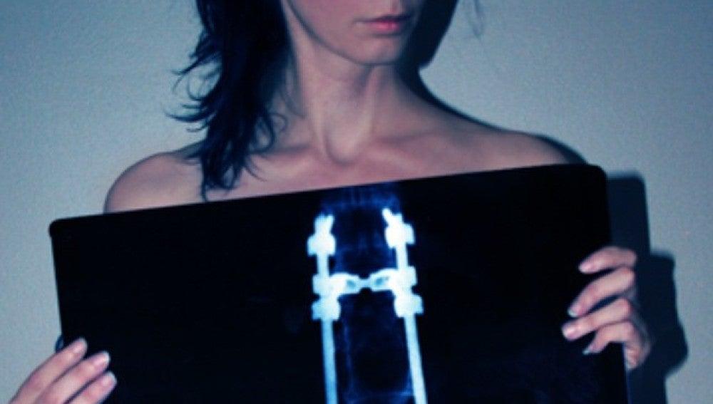 Lauren Watson muestra una radiografía de su espalda