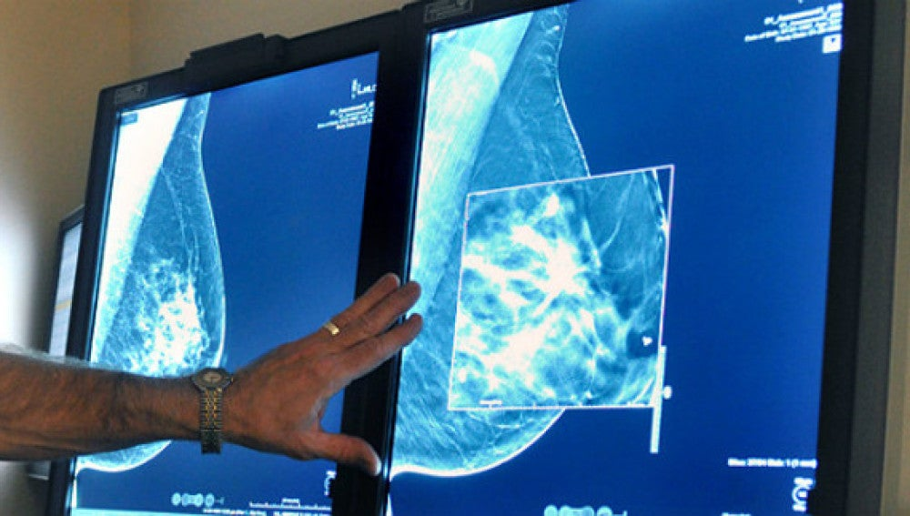 Imagen de archivo de un diagnóstico de cáncer de mama