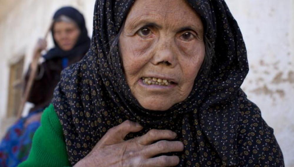 Una mujer afectada por la lepra