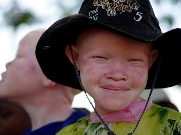 Un niño albino se protege del sol con un sombrero