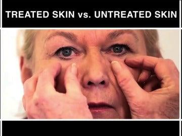 Frame 1.474591 de: Crean una piel artificial que elimina arrugas y protege del sol