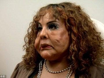 mujer con cemento inyectado