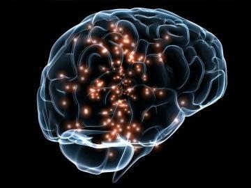 Recreación cerebro