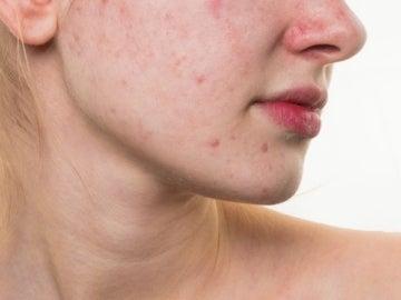 Una mujer con acné