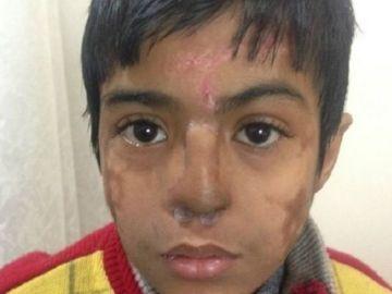 El niño con la nariz reimplantada