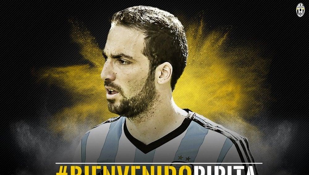 'Bienvenido Pipita', el mensaje de la Juventus tras fichar a Higuaín