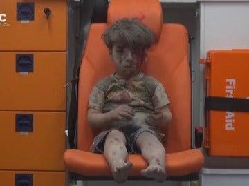 Omran, un pequeño de cinco años que se ha convertido en la imagen más inocente del horror en Siria