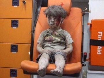 Un niño herido durante un bombardeo en Alepo