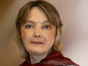 Isabelle Dinoire, la mujer francesa sometida en 2005 al primer trasplante parcial de cara del mundo