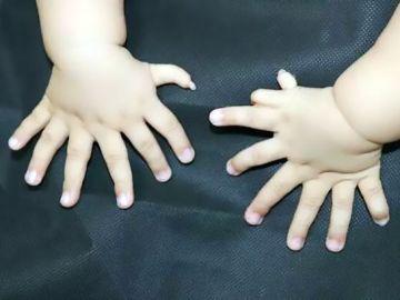 Los 15 dedos de las manos de un bebé chino