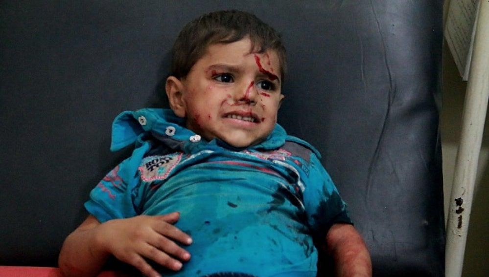 Un niño herido en Alepo