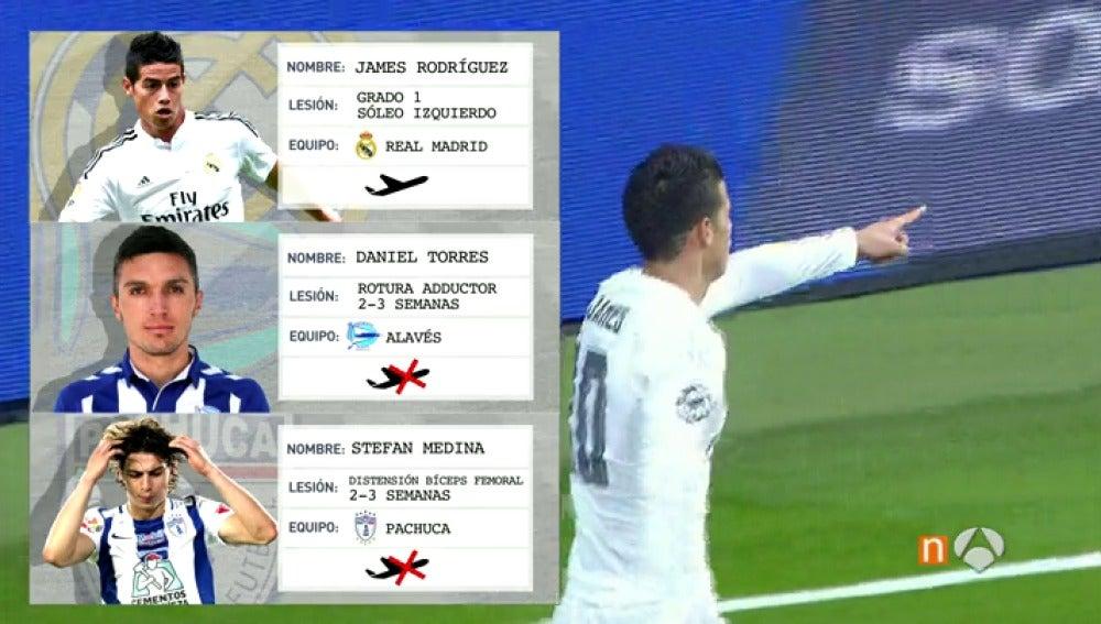 Frame 30.577634 de: El doble rasero para James y otros jugadores en su situación