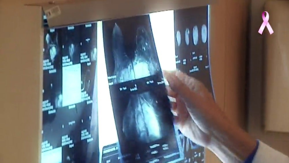 Frame 46.561121 de: El cáncer de mama, en cifras: de los casos anuales a las posibilidades de supervivencia en España