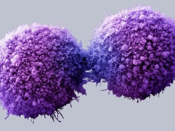 Células de páncreas cancerosas completando la división celular - Getty Images/Visuals Unlimited