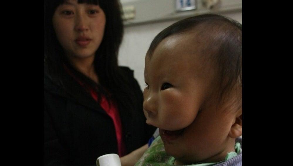 Huikang, el niño de la máscara