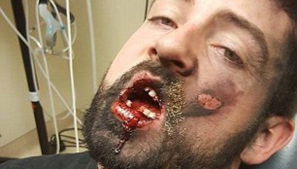 Andrew Hall, después de que le explotara un cigarrillo electrónico