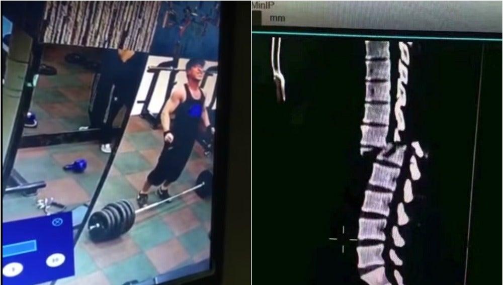 Imagen del momento en que se rompe la espalda