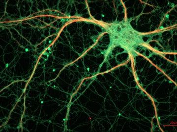 Imagen de una neurona vista al microscopio