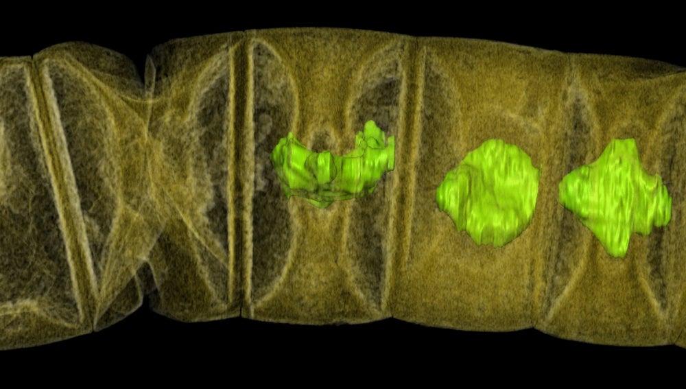 Radiografía del fósil de alga roja