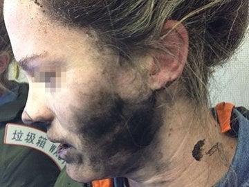 Mujer que sufrió quemaduras en la cara y cuello