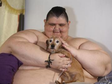 Juan Pedro, el hombre más obeso del mundo, será operado