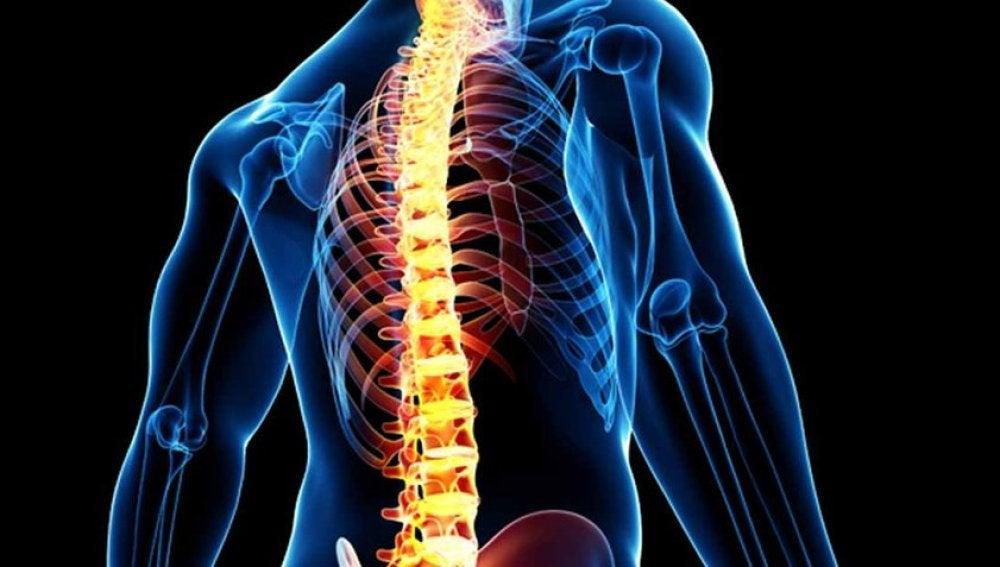 Un paralítico consigue andar debido a un implante de un dispositivo en la médula espinal