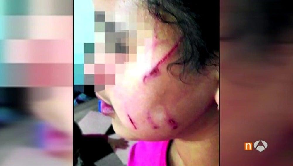 Frame 6.368827 de: La familia de una niña de 10 años denuncia un posible caso de bullying en Barakaldo