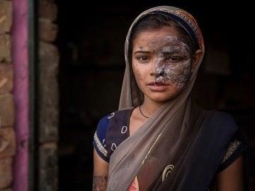Khushboo Devi, rociada con ácido por su padre