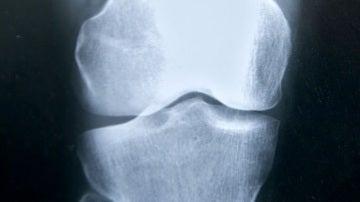 Una mutacion predispone a la fractura de femur en pacientes con osteoporosis