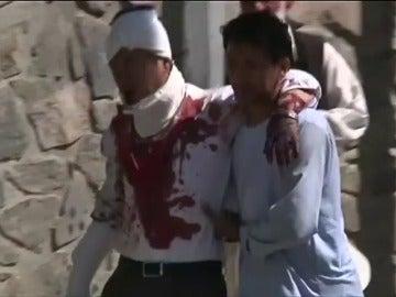 Frame 0.0 de: Al menos 80 muertos y más de 300 heridos en un atentado con coche bomba en la zona diplomática de Kabul