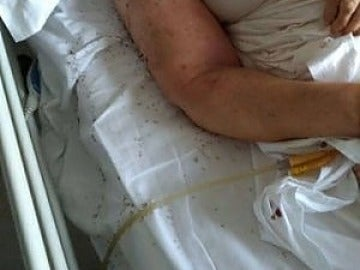 Indignación en Italia por paciente rodeada de hormigas en un hospital
