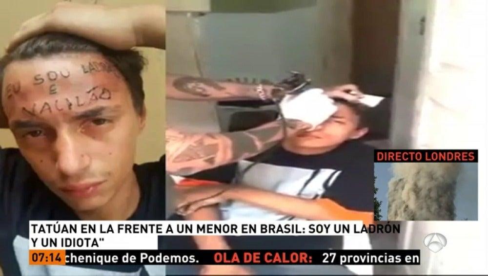 Frame 17.626701 de: Dos detenidos por el doloroso y 'permanente' castigo que dieron a un joven que intentó robarles