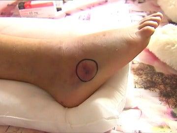 Varios bañistas hospitalizados por la mordedura de víboras en una playa de Ferrol