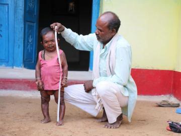 Un hombre de 76 centímetros es considerado una 'bendicón'