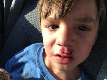 Un niño herido por un fidget spinner
