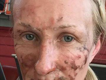 Una mujer sufre quemaduras en el rostro por un postre