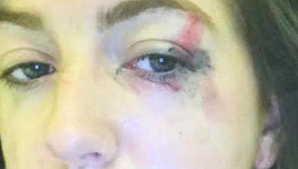 Emily Campbell tras el ataque en su casa