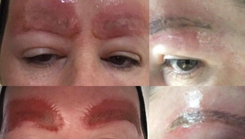 Así quedaron las cejas de la mujer tras hacerse el tatuaje