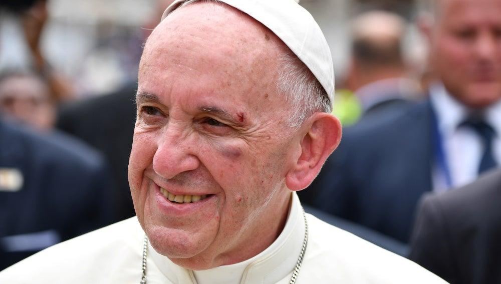 El Papa Francisco sufre una herida tras golpearse con el papamóvil