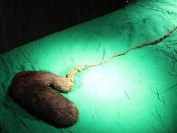 Bola de pelo extraída a la paciente