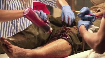 La operación de pierna de Vicente Romero en 'Tiempos de guerra'
