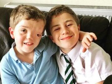 Harry, el niño con una desfiguración facial, junto a su hermano gemelo