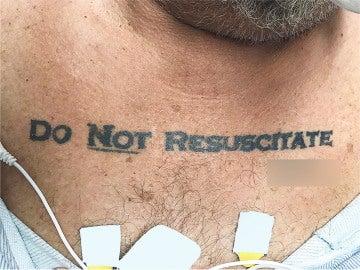 El tatuaje del paciente